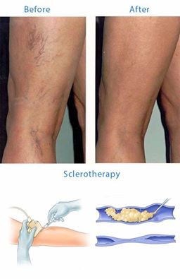 #‎Sclerotherapy‬ is a medical procedure used to eliminate varicose veins and spider veins. Sclerotherapy involves an injection of a solution (generally a salt solution) directly into the vein. The solution irritates the lining of the blood vessel, causing it to swell and stick together, and the blood to clot. Call 910-491-1760 for a complimentary consultation. ‪#‎spiderveins‬ ‪#‎spiderveinsremoval‬ ‪#‎imagespamd‬ ‪#‎imagepspamdmakeover‬ ‪#‎healthandbeauty‬ ‪#‎medspa‬ ‪#‎ranchocucamonga‬ ‪#‎encinitas‬ ‪#‎beverlyblvd‬ ‪#‎ca‬ ‪#‎beforeandafter‬