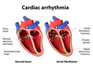 Cardiac Arrhythmia Diagram