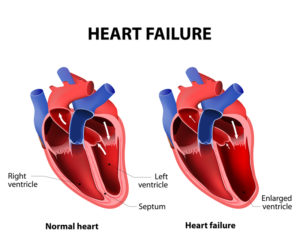 Congestive Heart Failure diagram